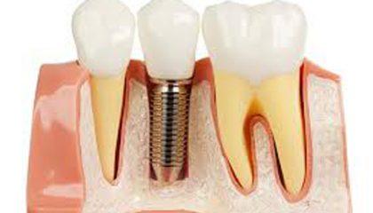 foto para implante
